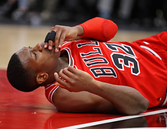 NBA player busts teeth in scary post-dunk fall