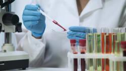 Una nueva vacuna que bloquea el contagio de VIH regala esperanza a