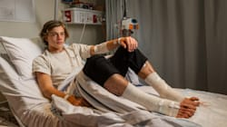Teen Emerges From Melbourne Beach With Bloodied Legs After A Quick