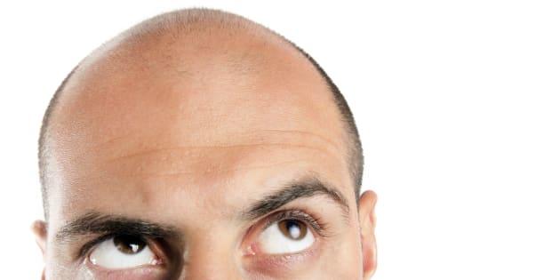 Un traitement contre l'ostéoporose favoriserait la repousse des cheveux — Calvitie