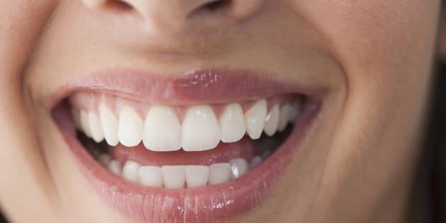 Épouser une fille qui n'avait plus ses dents naturelles et portait déjà ses deux prothèses dentaires représentait une économie appréciable en frais de dentiste pour le futur époux.