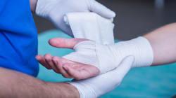 La guérison des plaies est deux fois plus rapide si on se blesse dans la