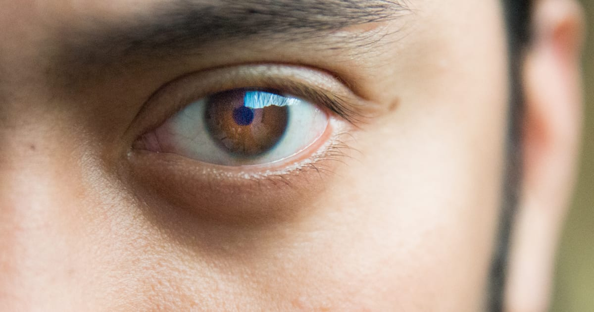 Eyelid Twitch How To Know When Its Serious Enough To See A Doctor