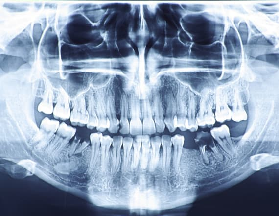 Dentists pull more than 500 teeth from child's mouth