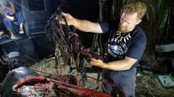 40 kg de plastique retrouvés dans l'estomac d'une