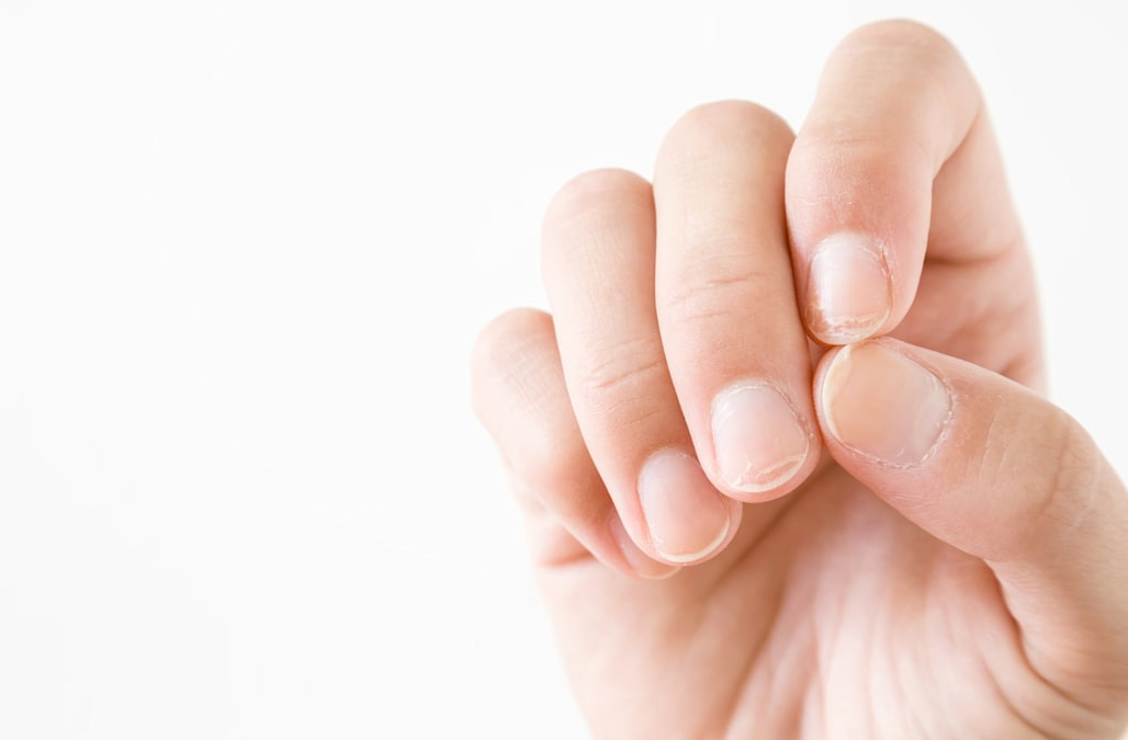 If you have this mark on your nails, you should get checked for ...