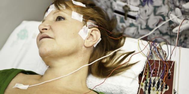 5 raisons pour lesquelles l'épilepsie mérite une politique publique coordonnée.