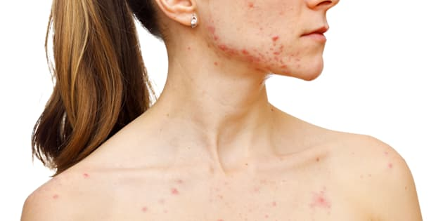 Attention, la rougeole n'est pas une maladie de l'enfance