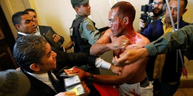 Des députés vénézuéliens en sang au Parlement à Caracas le 5 juillet 2017.