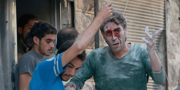 A wounded man is seen after airstrikesnear Aleppo, Syria on Tuesday.