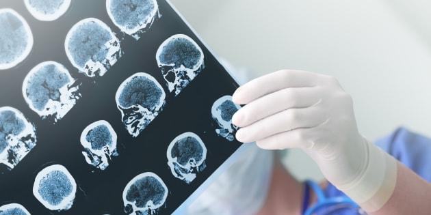 L'herpès pourrait jouer un rôle dans le développement de la maladie d'Alzheimer (photo d'illustration)