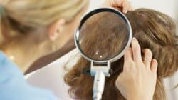 7 Foolproof Ways To Avoid Head