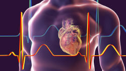 Maladies cardiovasculaires: les femmes laissées-pour-compte selon un