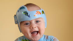 Helmet-Wearing Baby Photo Causes A Flood Of Baby-Helmet