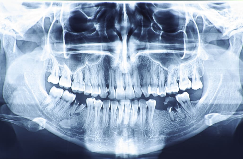 Dentists in India pull more than 500 teeth from 7-year-old boys mouth