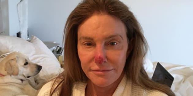 Avec cette photo postée sur Instagram, Caitlyn Jenner alerte ses fans sur les dangers du soleil.