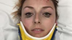 Hospitalisée après avoir été renversée par une voiture, elle a tenu à recommander... son