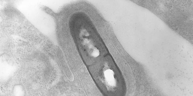 This is a transmission electron micrograph (TEM) of a Listeria sp bacterium in a tissue sample, 2002. Listeria monocytogenes is the infectious agent responsible for the food borne illness listeriosis.