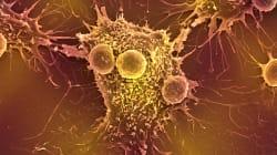 BLOGUE Traiter le cancer