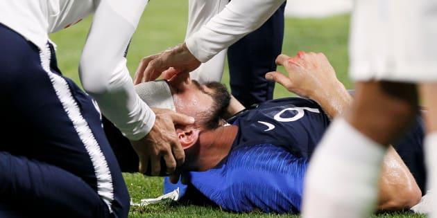 Emmanuel Foudrot  Reuters                       Olivier Giroud soigné lors de France- Etats Unis à Lyon le 9 juin 2018