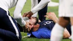 Giroud en sang après un violent choc lors de France -