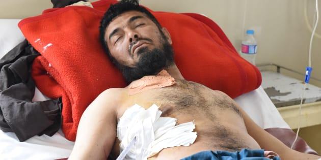 Un Pakistanais blessé près de la frontière et hospitalisé à Quetta, le 5 mai. Afghans et Pakistanais se sont accusés mutuellement d'avoir abattu des civils ce jour-là, après que des tirs ont commencé près d'un passage à la frontière. Depuis, les autorités pakistanaises ont fermé ce point d'accès à l'Afghanistan, menaçant d'exacerber les tensions entre les deux pays.