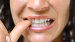Ti mangi le unghie? Potresti essere un