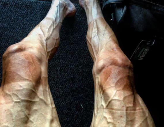 Tour de France cyclist shares freaky sight of legs