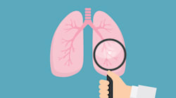 Así afecta a tus pulmones fumar