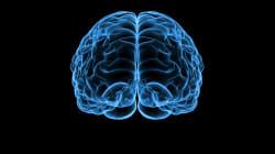脳内のアミロイドβ病変を予測する血漿マーカー