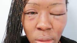 Studentessa dell'Università di Bari picchiata dall'ex pubblica su Instagram le foto del volto
