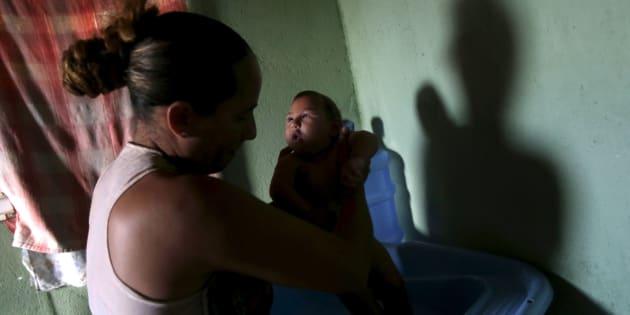 Josemary da Silva, 34, dá banho em Gilberto, de 5 meses, que nasceu com microcefalia em Algodao de Jandaira, na Paraíba.