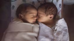Survival Rate Of Preemie Babies Has Been Steadily Improving: