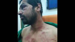 Man Held For Assaulting Dhule Doctor Hangs Himself In Police