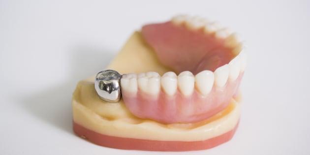 Le nouveau remboursement des soins dentaires pourrait signer le retour des  prothèses en métal ed2fc4814ef9
