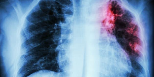 On croit souvent que la tuberculose est une maladie du passé. Mon histoire prouve le contraire.