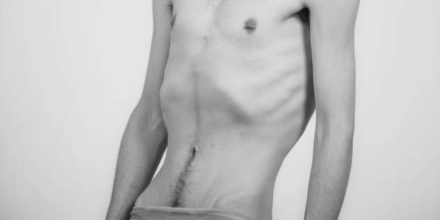 A young man with anorexia.