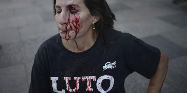 Servidora pública Valdinea Cavalcante foi ferida no olho em meio a protesto em frente à Alerj.