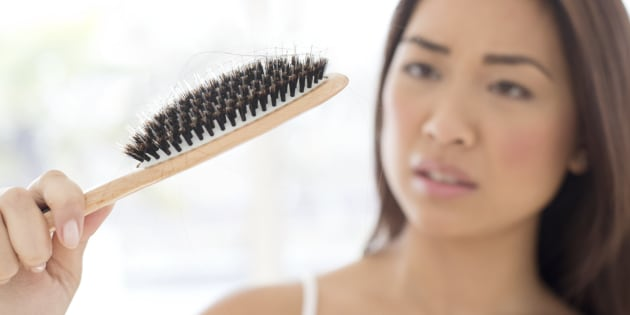 Postpartum Hair Loss Is The Pregnancy Side Effect I Just Can T Get