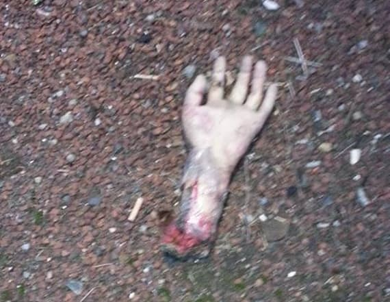 'Severed hand' triggers highway shut down in UK
