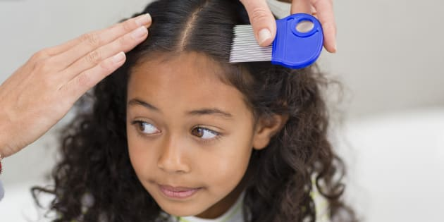 A school board in Ontario has proposed a new lice policy, but not everyone is impressed.