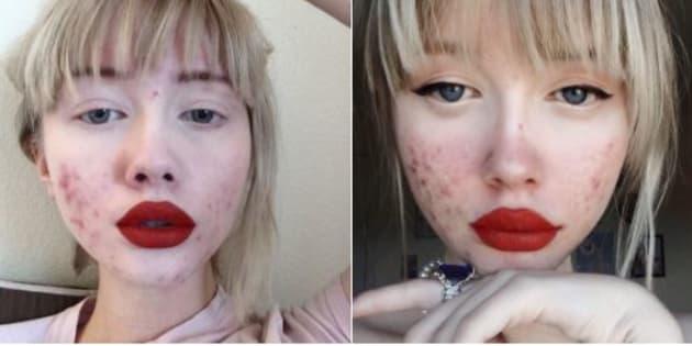 """""""Rappel: l'acné ne vous rend pas horrible"""", la mise au point salutaire de cette blogueuse de 17 ans"""