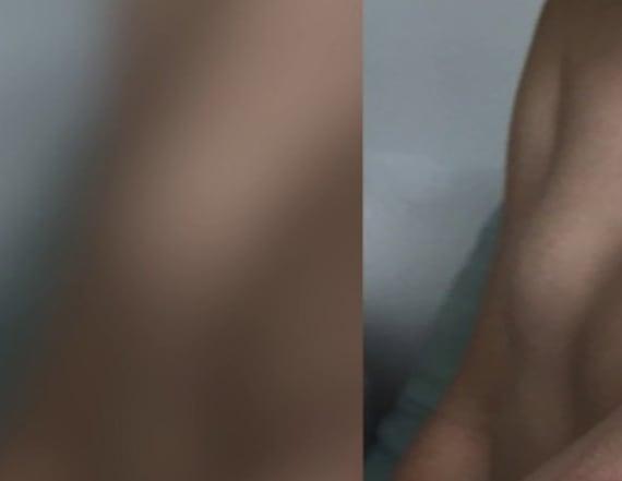 Boy has allergic reaction to henna tattoo