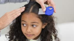 Kids With Lice Won't Be Asked To Stay Home Under New School