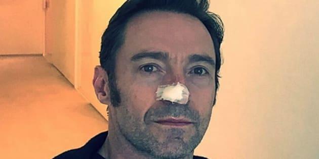 Hugh Jackman has undergone a sixth treatment for skin cancer.