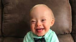 「幸せになる笑顔」が心をわしづかみ ダウン症の赤ちゃん、幼児食メーカーのモデルに