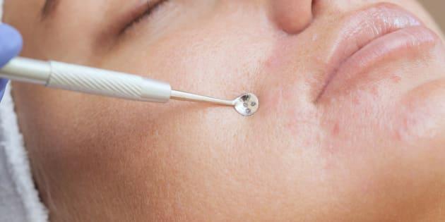 ¿Es bueno para la piel hacerse extracciones de puntos negros?