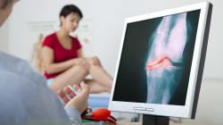 Comment soigner l'arthrose en évitant