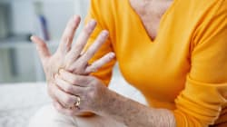BLOGUE L'arthrite: quand les problèmes se