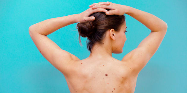Moles on the back of a woman.
